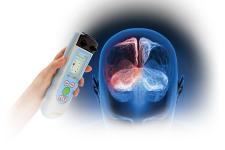 Thiết bị cầm tay chẩn đoán tụ máu não INFRASCANNER model 2000